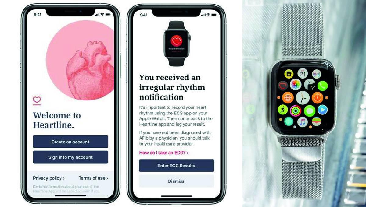 苹果公司与强生集团强强联手!iPhone和Apple Watch实现预防中风功能!