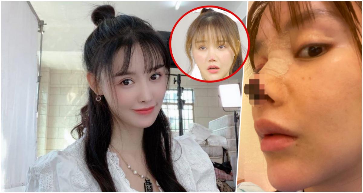 鼻子整形手术失败,鼻头发黑坏死!中国女星揭恢复情况,鼻头肉长不回来了!