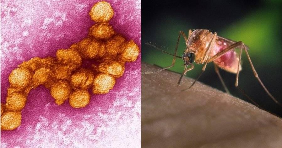 美国偷偷崛起另外一种病毒?症状与新冠病毒有些相似!目前出现了17宗!