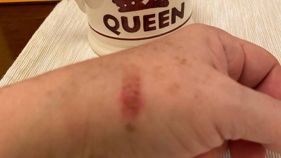 Jika Tak Cedera Bukan Tukang Masak Saya Ada Tunku Azizah Kitareporter Melaporkan Warna Warna Kehidupan